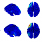 Understanding the market for a novel approach to imaging brain activity in 3D